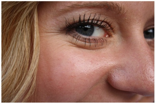 Eye wrinkles usually appear after 30